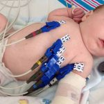 Baby boy in hospital after vaccinations