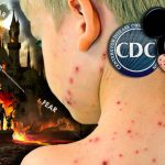 "All media coverage of ""measles outbreaks"" is scripted FAKE NEWS to promote vaccine industry interests"