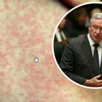 Health Minister Brad Hazzard Blames Anti-Vaxxers For One Case Of Measles In Sydney