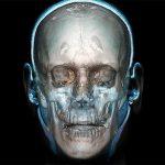 Electronic Torture + 21st-Century Bio-Hacking And Bio-Robotizing