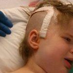 Girl Lost Half Her Brain After MMR Vaccine
