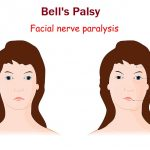 Dr. Meryl Nass: Bell's Palsy Occurred in 7 Cases with Subjects who Received a COVID mRNA vaccine – Yes it is a Vaccine Reaction